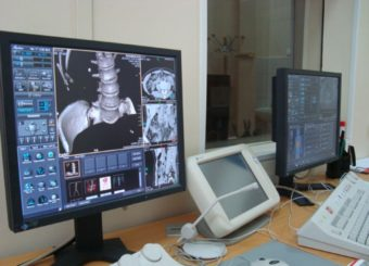 КТ в процессе сканирования