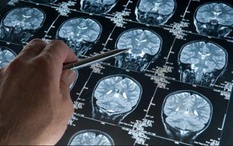 КТ головного мозга