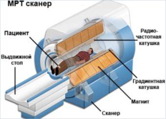 Структура аппарата МРТ сканера